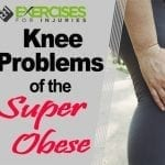 Knee Problems of the Super Obese