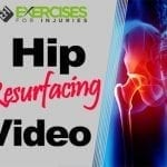 Hip Resurfacing Video