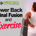 Lower Back Spinal Fusion and Exercise (Webinar)