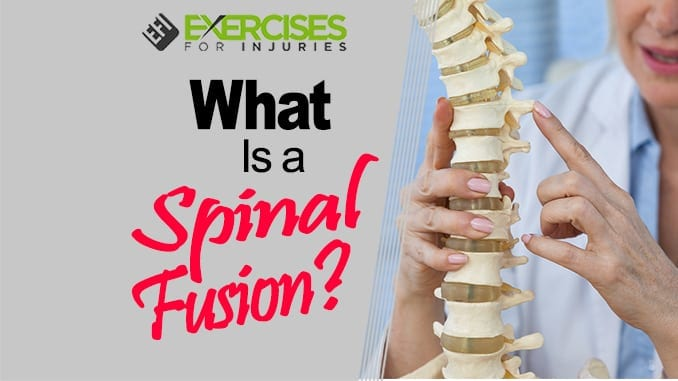 What is a Spinal Fusion