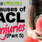 Causes of ACL Injuries (Part 5)
