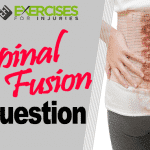 Spinal Fusion Question