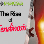 The Rise of Tendinosis