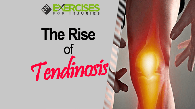 The Rise of Tendinosis copy