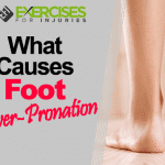 What Causes Foot Over-Pronation?