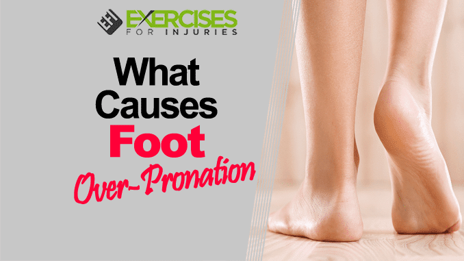What Causes Foot Over-Pronation copy