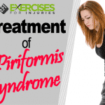 Treatment of Piriformis Syndrome