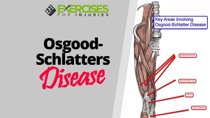 Osgood-Schlatters Disease - Exercises For Injuries