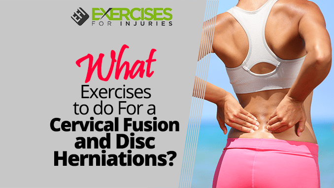 What Exercises to do For a Cervical Fusion and Disc Herniations