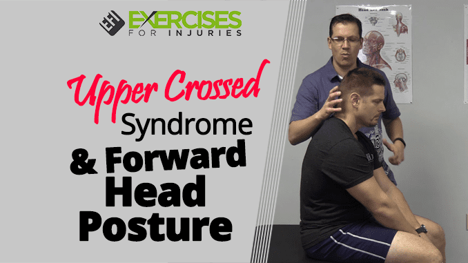 Upper Crossed Syndrome & Forward Head Posture