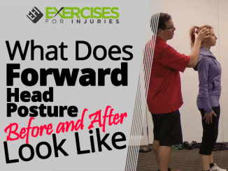 What Does Forward Head Posture Before and After Look Like