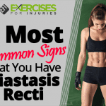 2 Most Common Signs That You Have Diastasis Recti