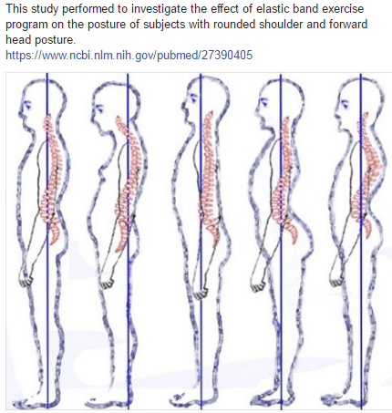 This study performed to investigate the effect of elastic band exercise program on the posture of subjects with rounded shoulder and forward head posture.