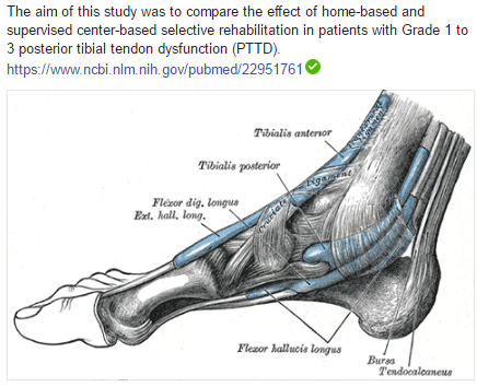 The aim of this study was to compare the effect of home-based and supervised center-based selective rehabilitation in patients with Grade 1 to 3 posterior tibial tendon dysfunction (PTTD).