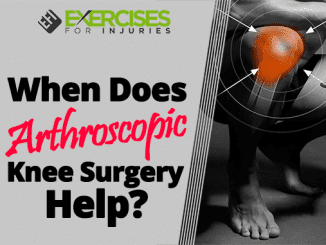 When Does Arthroscopic Knee Surgery Help