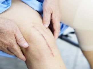 Knee Replacements - Benefits, Risks & Recovery