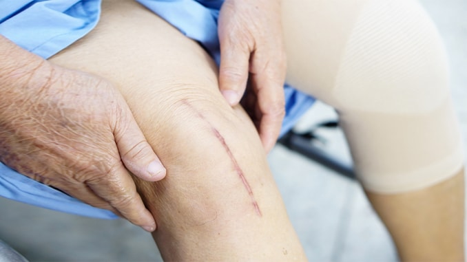 Knee Replacements – Benefits, Risks & Recovery