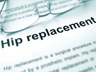 7 Ways to Speed Recovery After a Hip Replacement Surgery