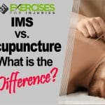 IMS vs. Acupuncture — What Is the Difference?