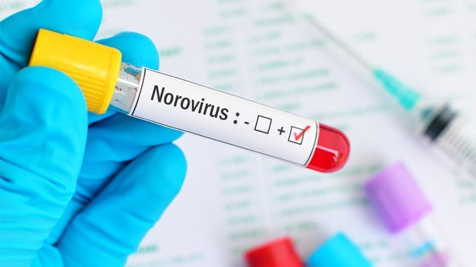 Natural Ways to Treat Norovirus (Stomach Flu)