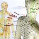 Should You Try Acupuncture?