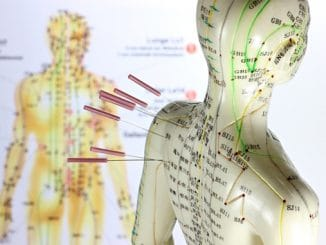 Should You Try Acupuncture