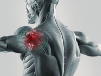 How-Do-I-Relieve-Shoulder-Pain-Caused-by-a-Bicep-Tendon